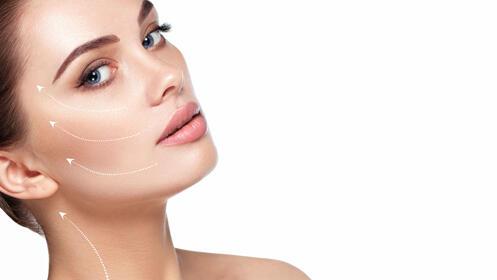 Radiofrecuencia facial, Lifting sin cirugía