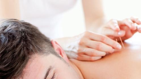 Mantén a raya la ansiedad y el estrés con la acupuntura